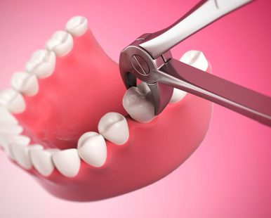 Tooth-Extractions2