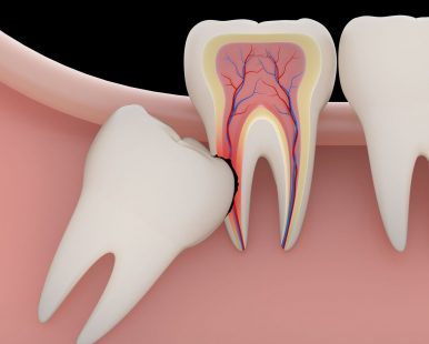 Tooth-Extractions3
