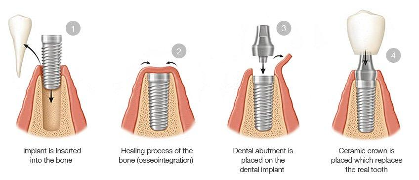 4 steps for a Dental Implant
