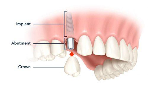 dental implant bone grafting