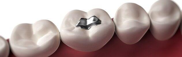 Amalgam Removal - Biological Removal of Mercury Fillings