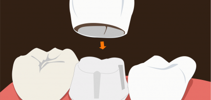 Dental-Crowns2