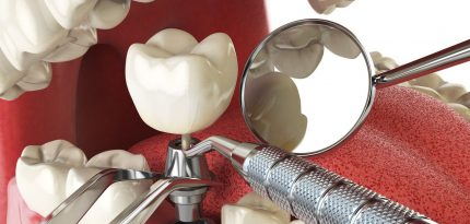 Dental-Crowns3