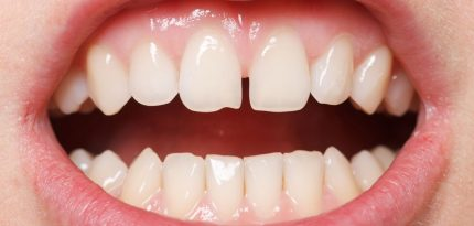 Dental-Veneers-2