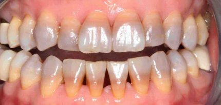Dental-Veneers-3