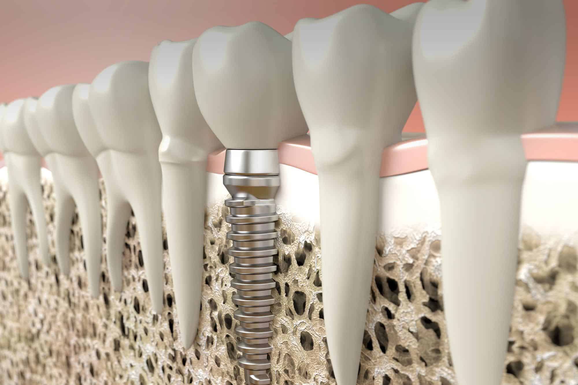DentalImplantsSplash